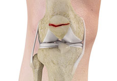 Fractures of the Patella